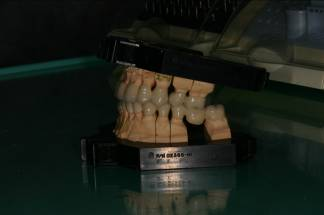 Sunset_era_removable_prosthesis_21
